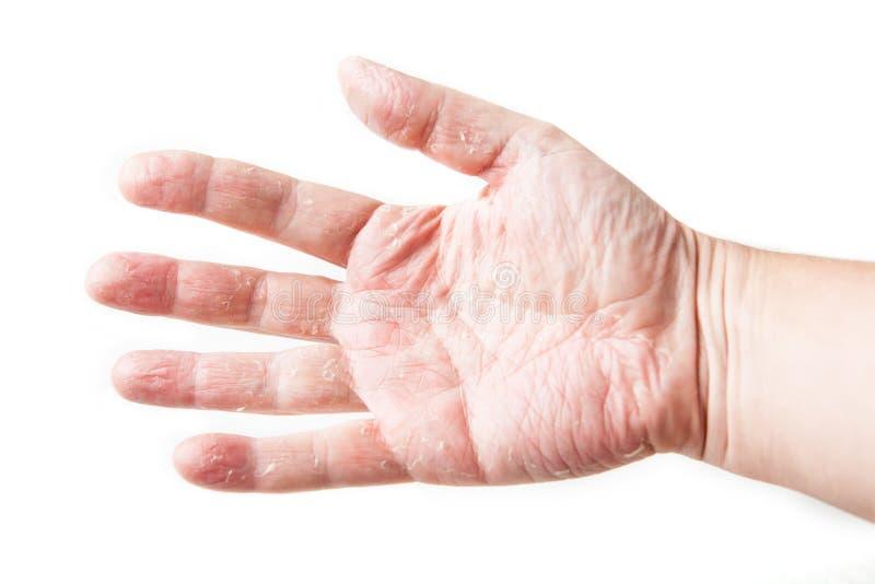 Maladie de la peau L'essai de correction d'allergie de peau soutiennent dessus de la rougeur et du gonflement de représentation p photographie stock