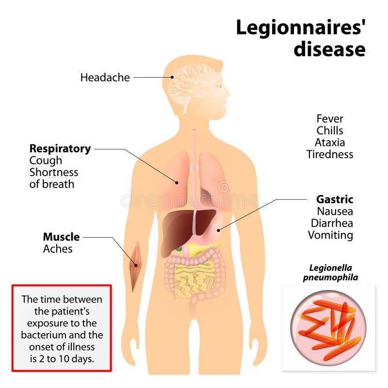 Maladie des légionnaires ou legionellosis illustration stock