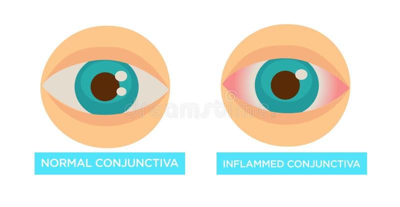 Maladie oculaire endolorie normale et enflammée de conjonctive illustration de vecteur