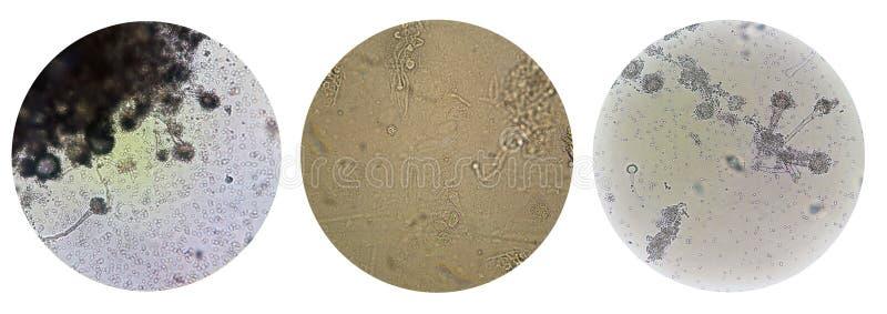 Maladie sexuellement transmissible microscopique DST de vue d'aspergille de champignons photo libre de droits
