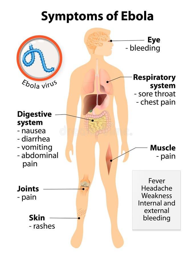 Maladie virale de virus Ebola illustration stock