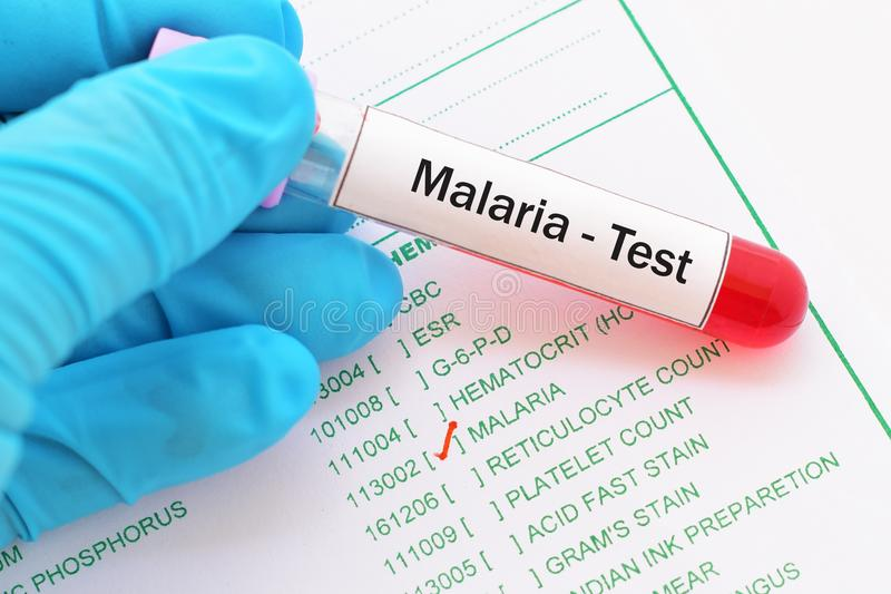 Malaria test obraz royalty free