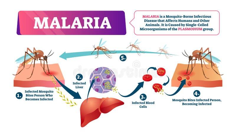 Malaria vectorillustratie De besmette ziekte van de mugbeet bloed vector illustratie