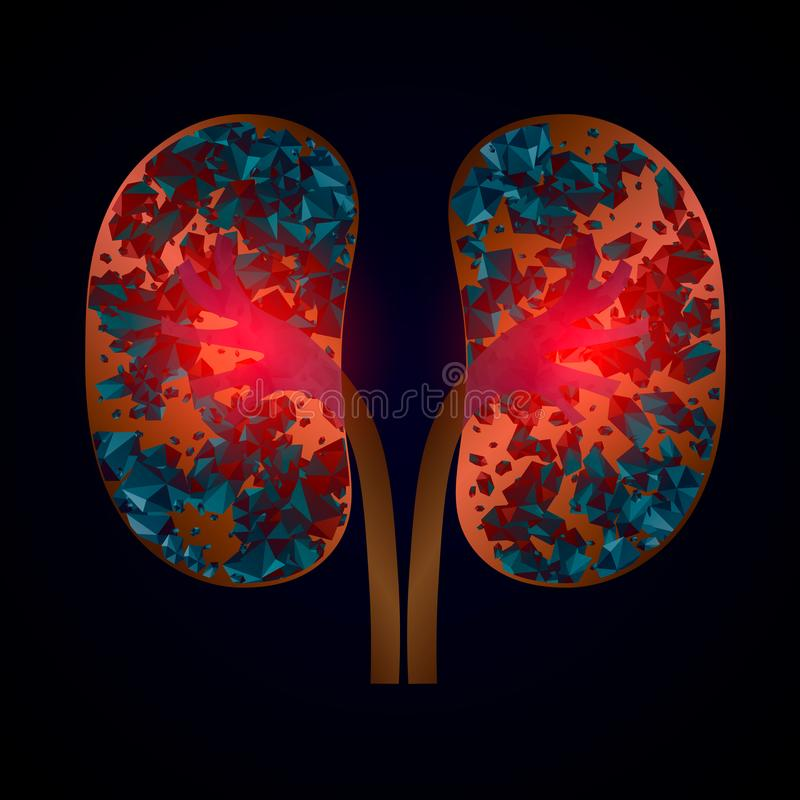 Malattia dei calcoli renali della nefrolitiasi Illustrazione medica di vettore isolata illustrazione vettoriale