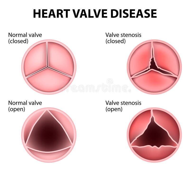 Malattia della valvola cardiaca illustrazione di stock
