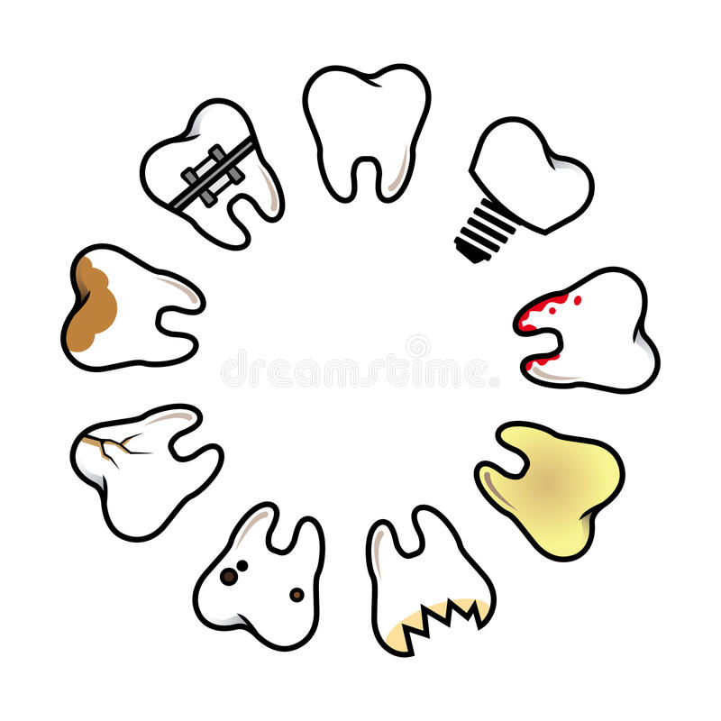 Malattia dentaria fotografia stock libera da diritti