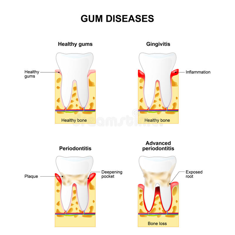 Malattia di gomma illustrazione vettoriale
