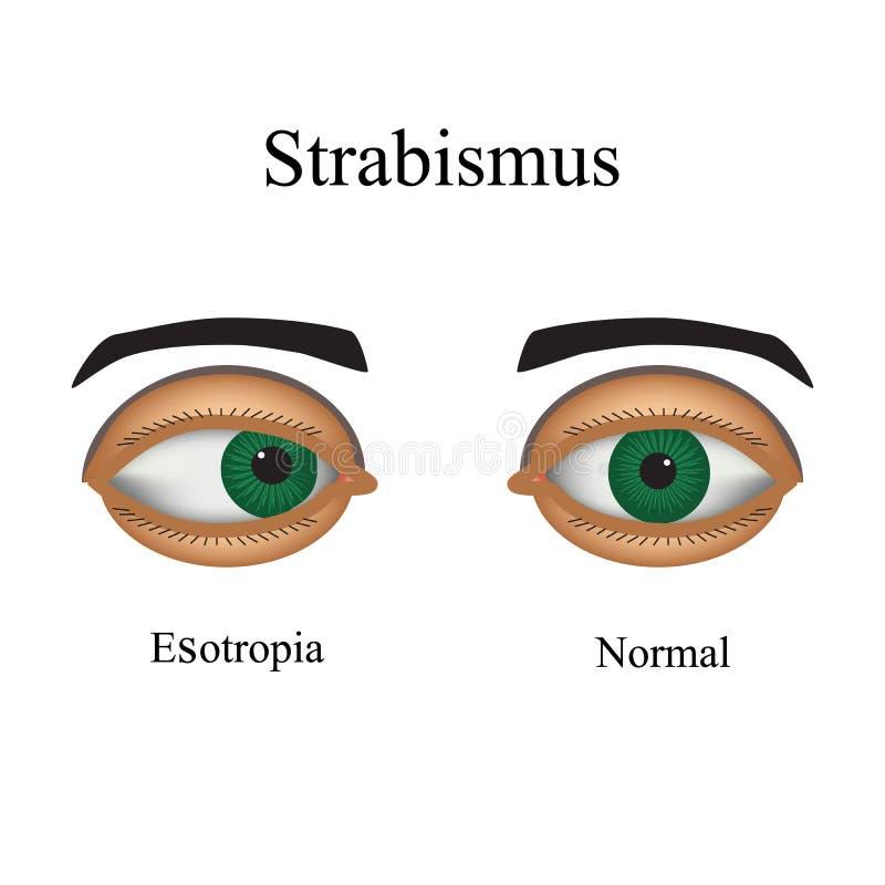 Malattie dell'occhio - strabismo Una variazione di illustrazione di stock