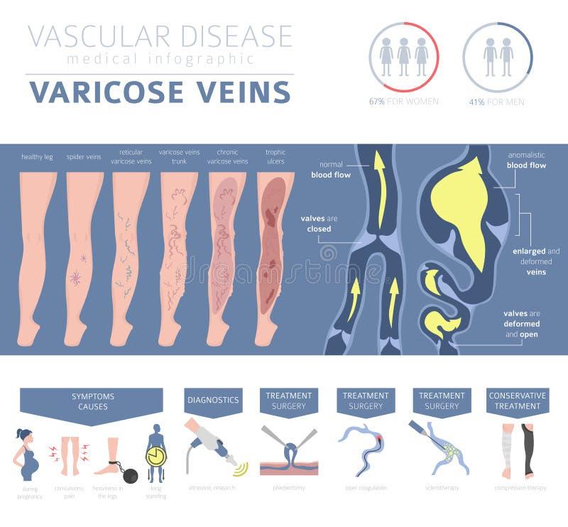 Malattie vascolari Sintomi delle vene varicose, insieme dell'icona di trattamento illustrazione vettoriale