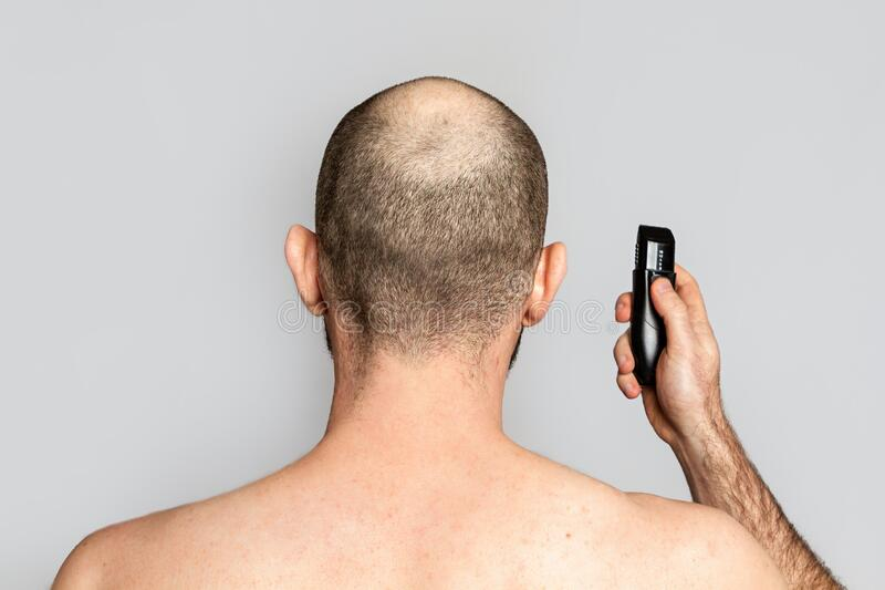 Male alopecia. A man with a receding hairline is holding an electric razor. Rear view. Shoulder-length view. Gray background. Copy. Space stock images