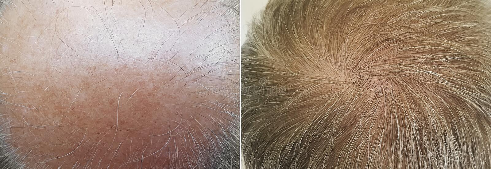 Male  baldness before and after treatment royalty free stock photos