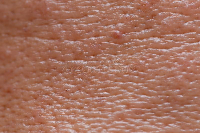 Male face oily skin large pores with acne macro shot royalty free stock photo