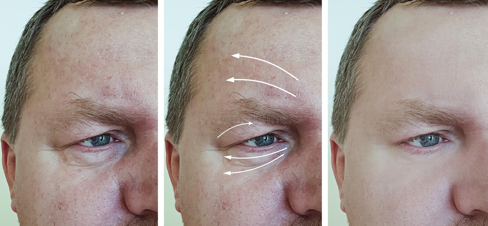 Male face wrinkles before and after removal correctio regeneration n procedures royalty free stock photo