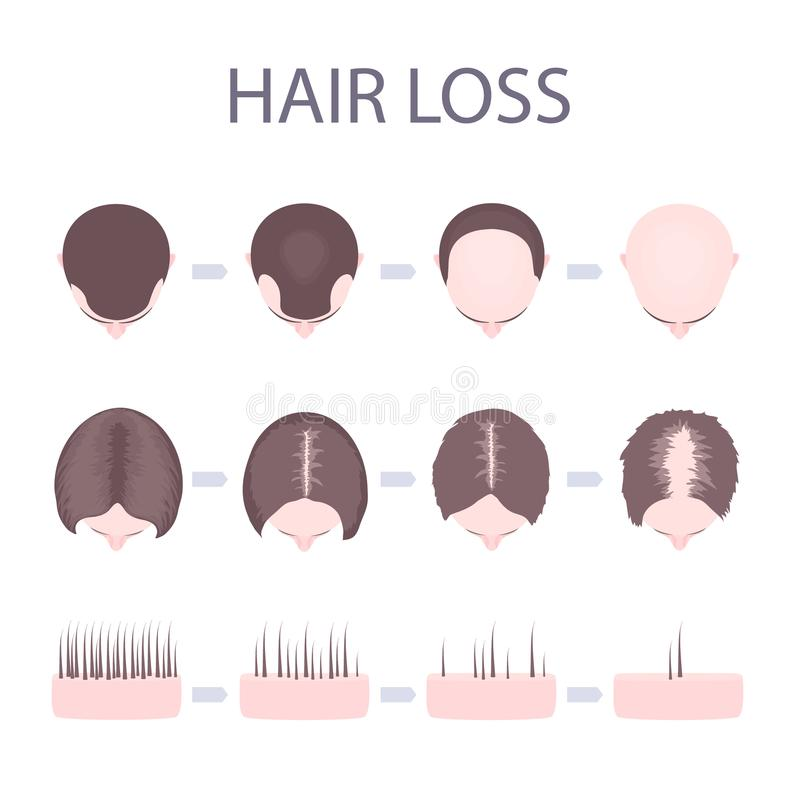 Male and female hair loss. Male and female pattern hair loss set. Stages of baldness in men and women. Number of follicles on scalp in each step. Alopecia stock illustration