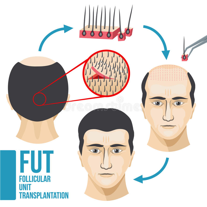 Male hair loss treatment medical vector infographic. Disease hair and baldness, growth and transplant hair illustration stock illustration