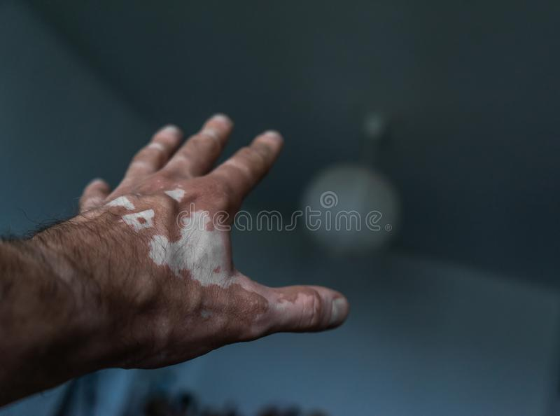 The male hand is affected by vitiligo. Health. stock image