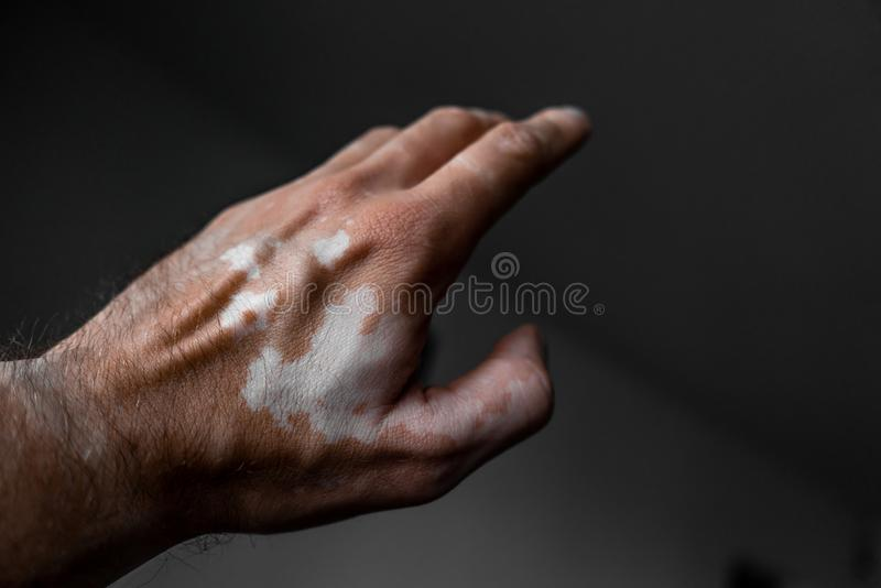 The male hand is affected by vitiligo. Health. stock photo