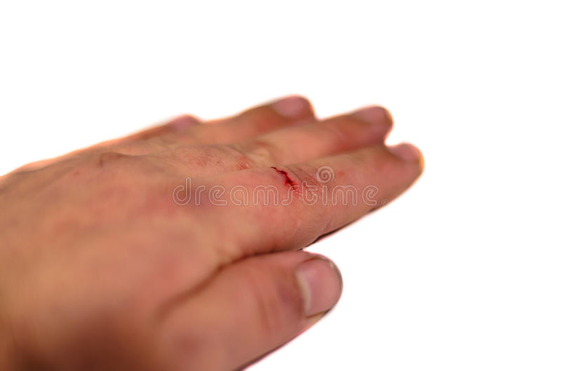 Male hand with bleeding finger isolated on white background royalty free stock photography