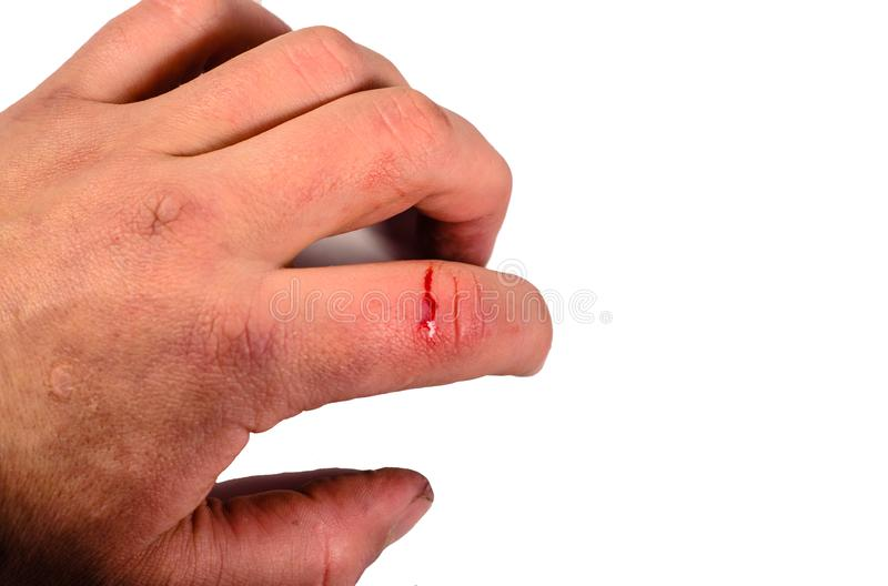 394 Bleeding Finger Photos Free Royalty Free Stock Photos From Dreamstime