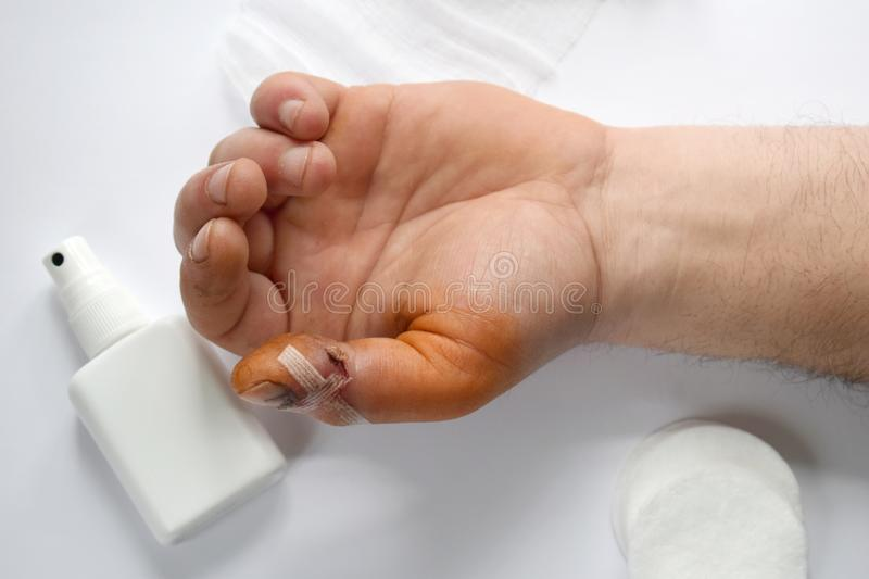 Male hand with bloody gash on big finger. Doctor examining of the patient. Patient cheering and support. Wound treatment with. Antiseptic medical care injury stock photo