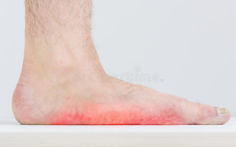 Male leg with strongly pronounced flat feet. stock images