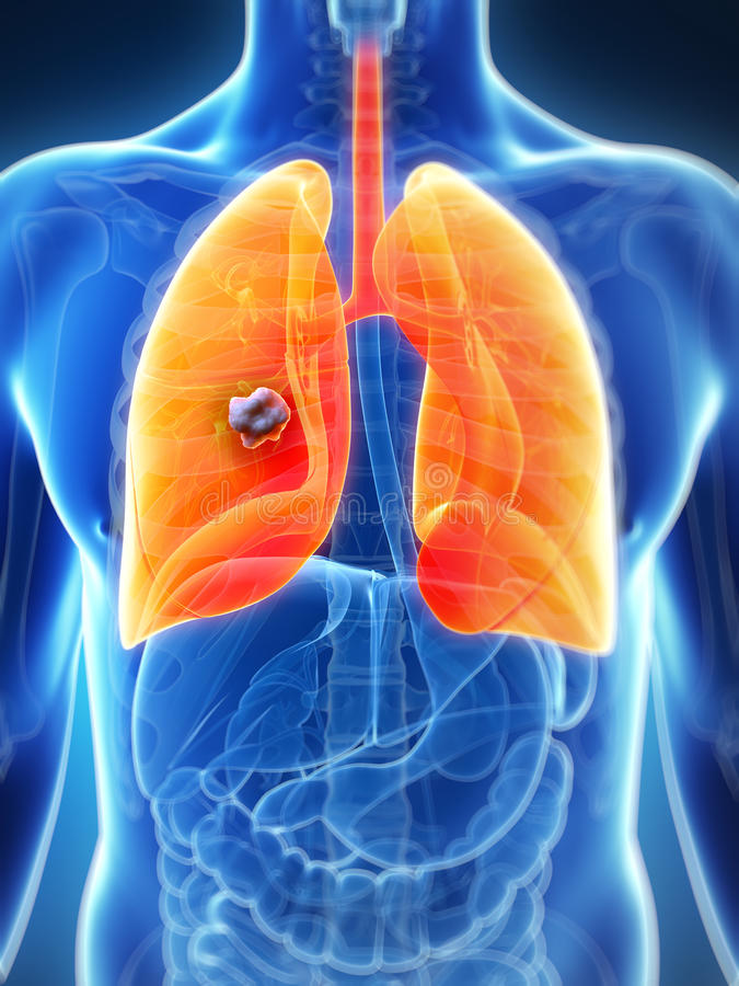 Download Male lung - cancer stock illustration. Illustration of abscess - 28961571