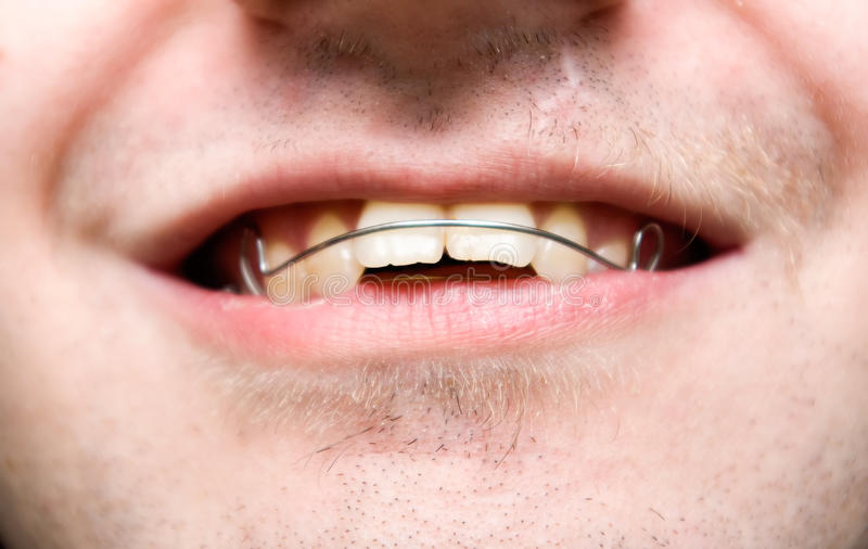 Download Male With Overbite Wearing Braces And Smiling Stock Image - Image: 12249847