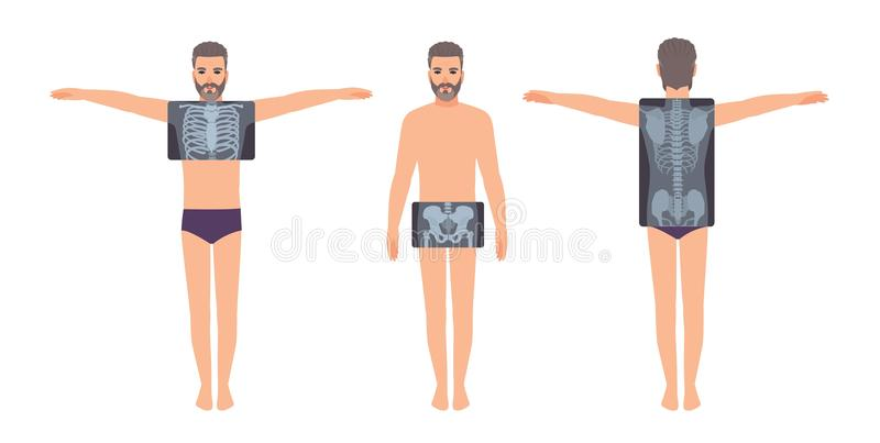 Male patient and his chest, pelvis and back radiograph isolated on white background. Bearded man and X-ray pictures of. His skeletal system on monitor. Flat stock illustration