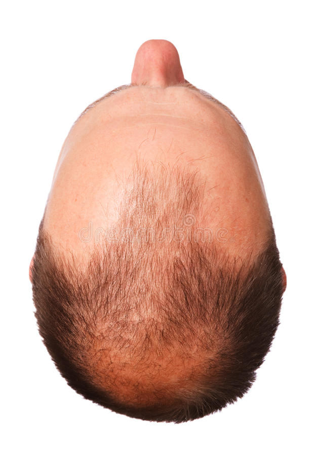 Male pattern baldness stock photo