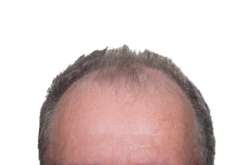 Male Pattern Baldness royalty free stock photography