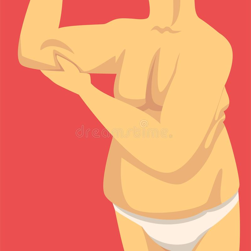 Male Torso, Man Clamping Fold of Fat Forearm with His Hand, Human Body After Weight Loss, Obesity and Unhealthy Eating stock illustration