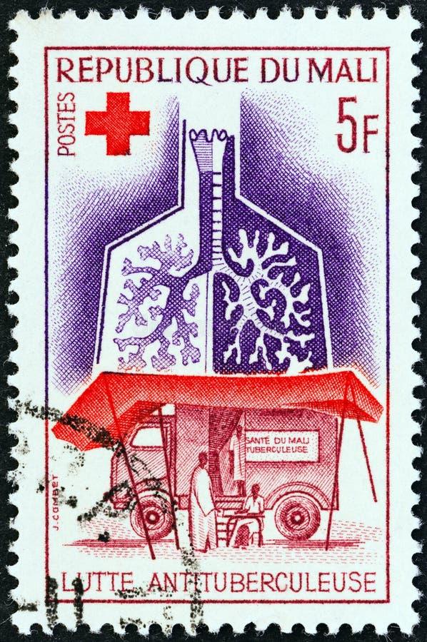 MALI - CERCA DE 1965: Um selo impresso nos pulmões das mostras de Mali e na unidade de raio X móvel anti-T B , cerca de 1965 foto de stock