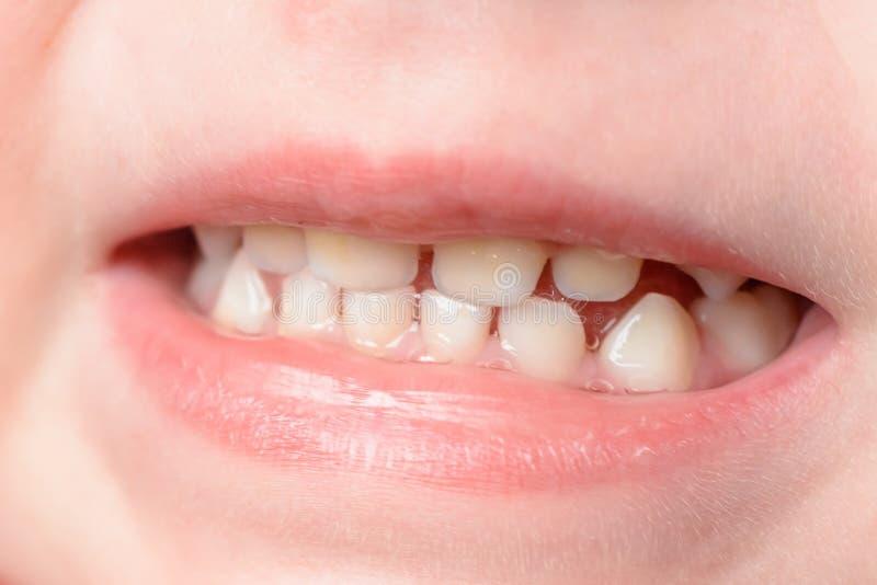Mali dziecko zęby strzelają przy makro- gdy śmia się zdjęcia royalty free