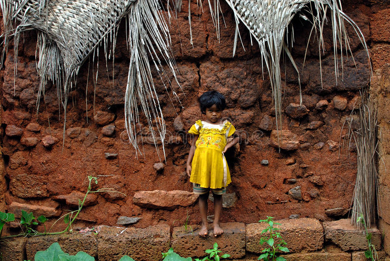 Download Malnourished Children In India Editorial Photo - Image: 26667371