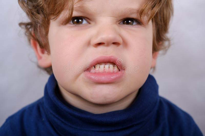 Malocclusion of the boy. Close up. medical problem stock photos