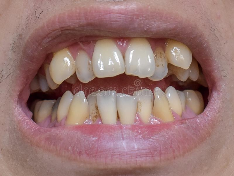 Malocclusion, surchargement des dents supérieures et inférieures photo libre de droits