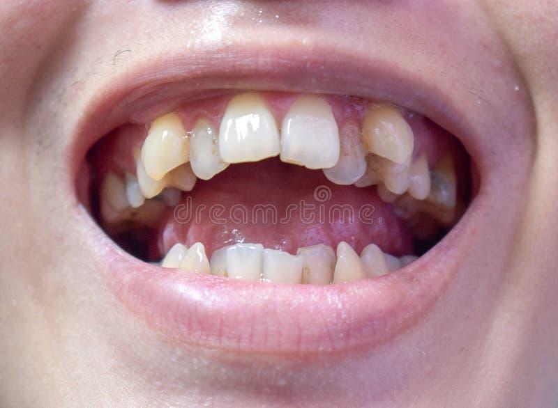 Malocclusion, surchargement des dents supérieures et inférieures photos libres de droits