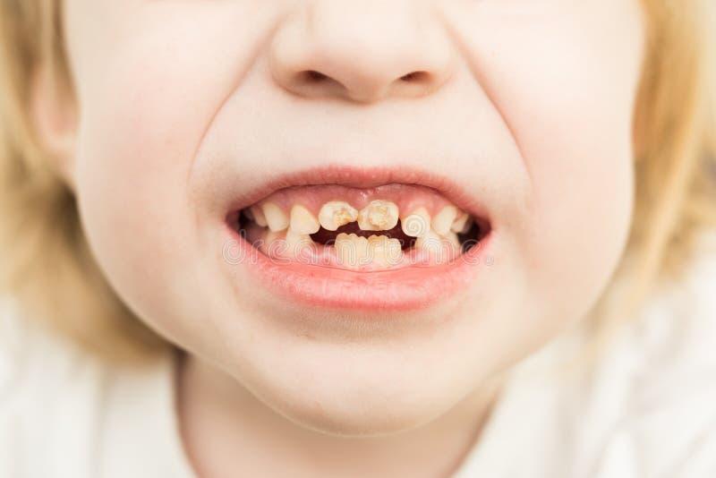 Malos dientes imágenes de archivo libres de regalías
