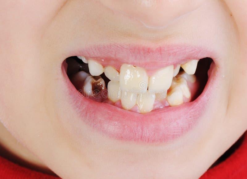 Malos dientes, primer fotos de archivo