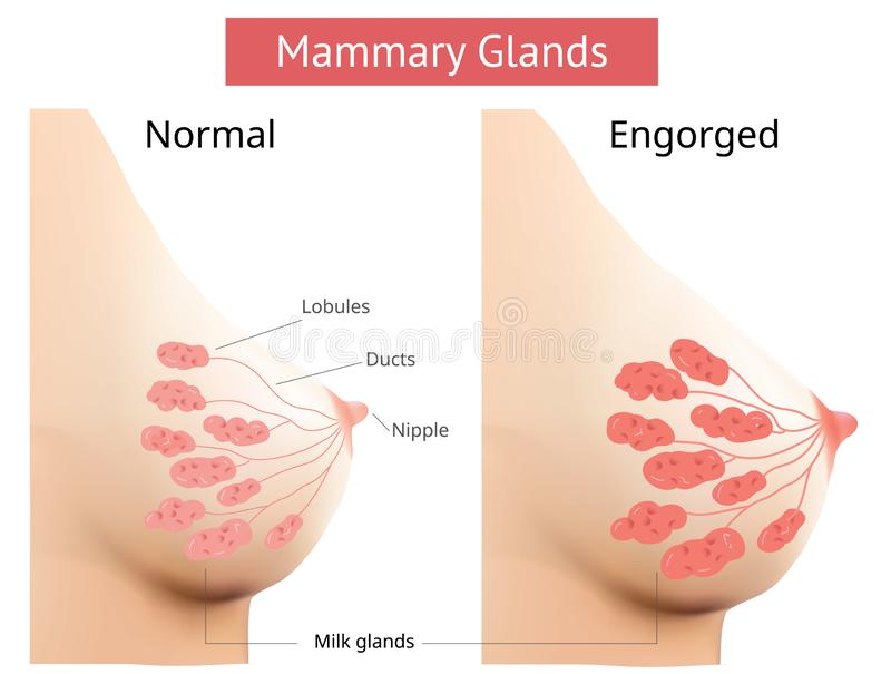 Mammary gland, Non-Lactating and Engorged breast, Female breast Anatomy, Vector stock illustration