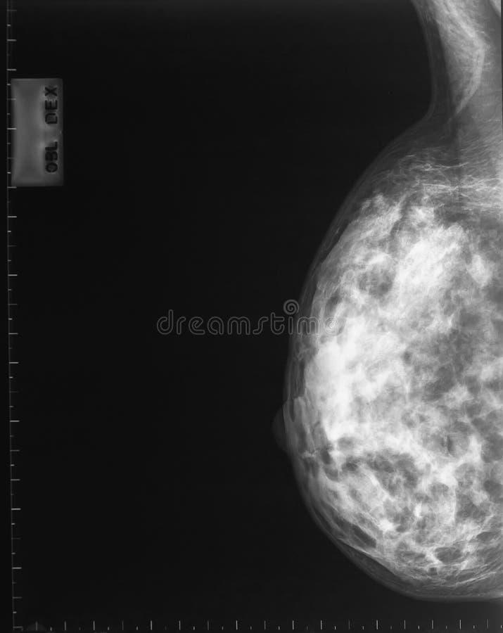 mammografiego promień x zdjęcia stock