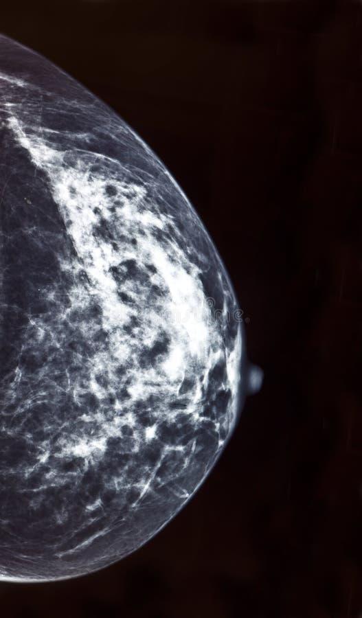 mammogram imagenes de archivo