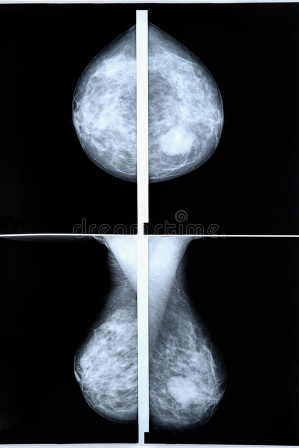 mammography obrazy royalty free