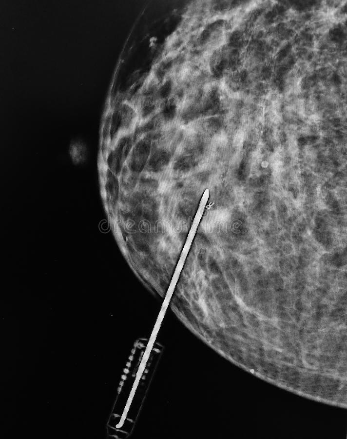Mammography biopsy needle pathological zone. Mammography is very important diagnostic tool ,which is using low energy x-ray to examine breast .Early detection of stock images