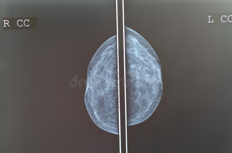 Mammography breast scan X-ray image. Breast health screening test royalty free stock photography