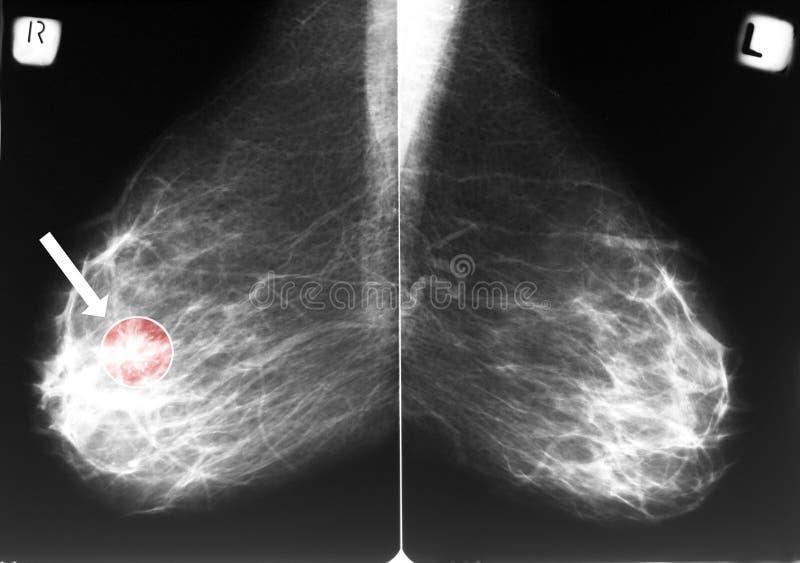 Mamograma con el cáncer de pecho imagen de archivo
