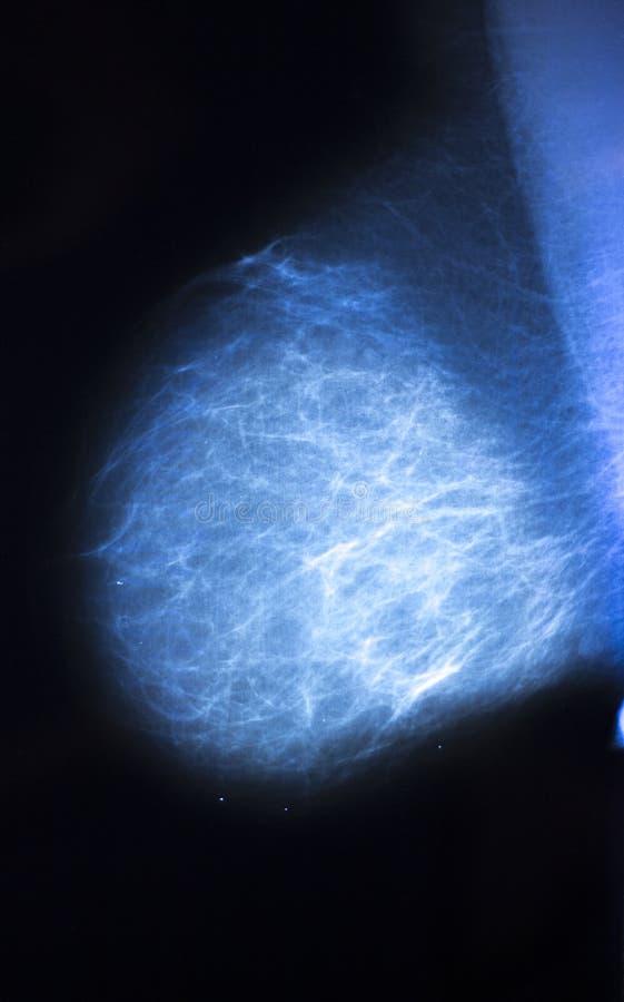 Mamograma da varredura do peito do raio X foto de stock royalty free