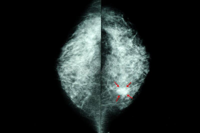 mamograma de pechos femeninos imagenes de archivo