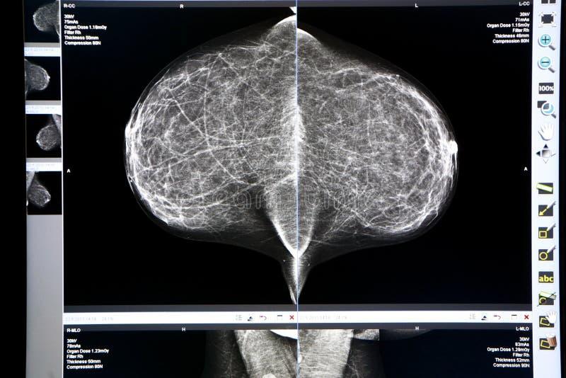 Mamograma do raio X imagem de stock royalty free