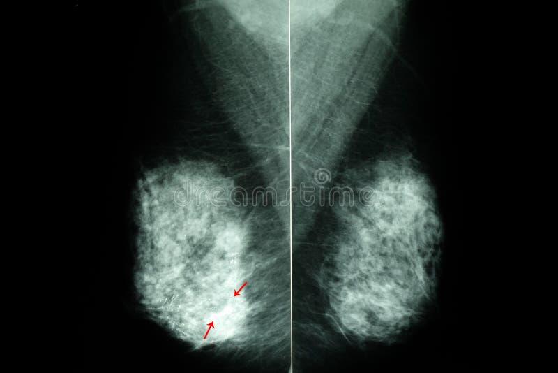 mamograma dos peitos fêmeas fotos de stock